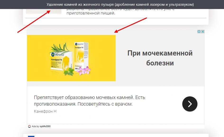 statya pro kamni v pochkah pokaz reklamy lekarstva dlya prepyatstviya obrazovaniya kamnej v pochkah